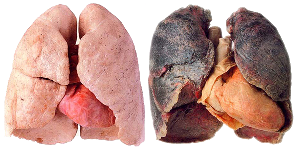 A healthy lung versus a black lung.